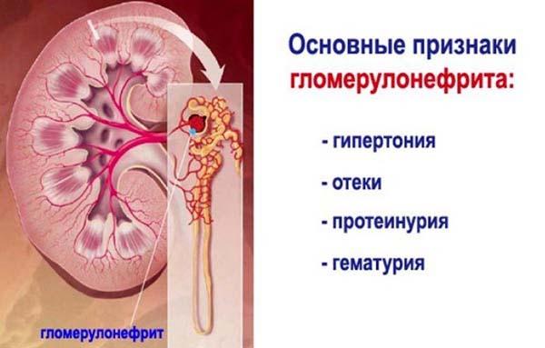 Симптомы нефрита